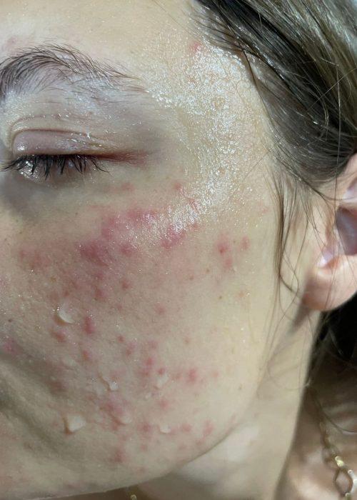 maszkviselés-bőrproblémák